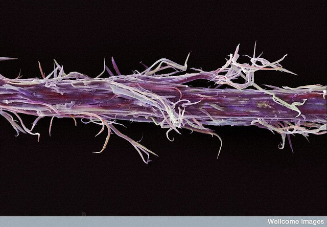 False-color scanning electron micrograph of a bleached and straightened strand of hair. Image credit: Wellcome Images
